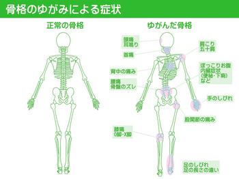 身体歪み左右比較のサムネール画像 からだ回復 整体 町田