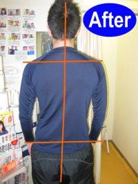病院の検査で腰椎椎間板ヘルニアされるも見事に改善