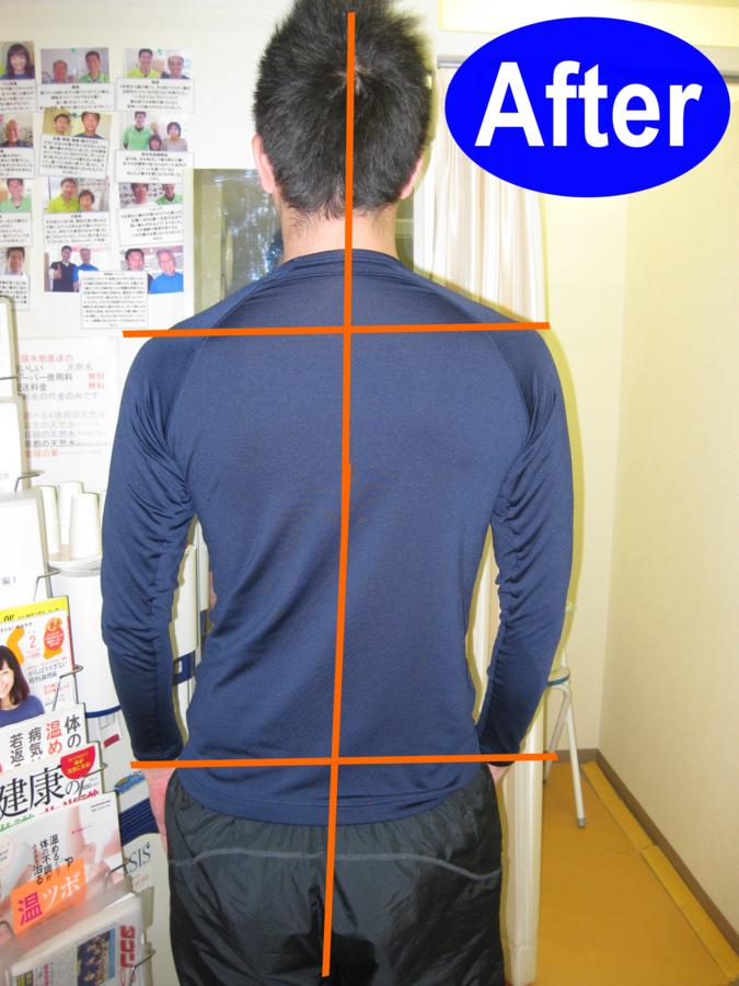 ビフォアアフター 腰痛、ヘルニア 11日後写真後面