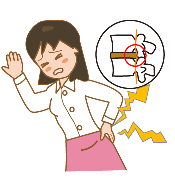 女性 椎間板ヘルニア