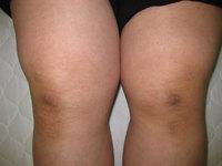 膝痛Before.jpg