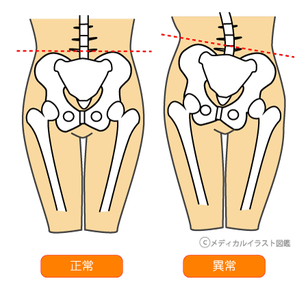 骨盤正常と歪み