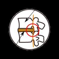 【坐骨神経痛、椎間板ヘルニアならカラダ回復整体町田】椎間板ヘルニアの解説図